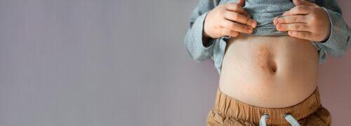 У дитини висип: які віруси провокують появу червоних плямок