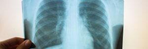 Як розпізнати пневмонію у маленької дитини?